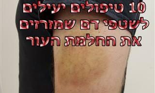10 שיטות טיפול טבעיות לשטפי דם ונפיחויות בעור