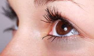 10 תרופות סבתא להסרת עיגולים שחורים מתחת לעיניים