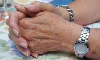 פתרונות לטיפול בנזקים הנגרמים לעור הידיים