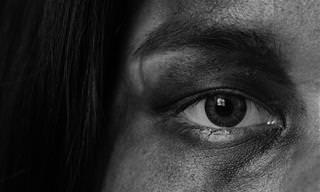 15 דרכים להעלמת שקיות מתחת העיניים