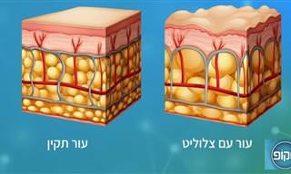 פתרון רפואי חדש לבעיית הצלוליט בעור - הכירו את ONDA