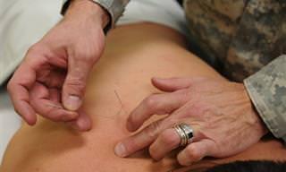 9 בעיות רפואיות שמטופלות באמצעות דיקור סיני
