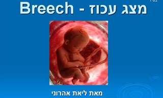 על לידה במצג עכוז