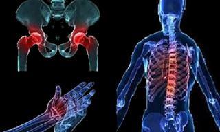 8 תרגילים למניעת דלדול עצם