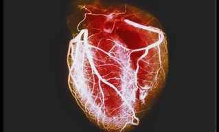 המדריך המלא למחלות לב נפוצות