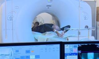 סריקה ממוחשבת חדשה יכולה לאבחן תאים טרום סרטניים בריאות