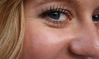 10 דרכים טבעיות להעלמת קמטים מסביב לעיניים