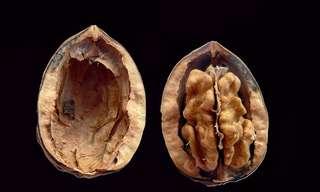 אגוזי מלך וכולסטרול