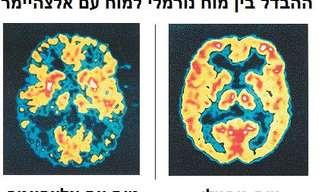 מחלת האלצהיימר והטיפול בחולה עם אלצהיימר