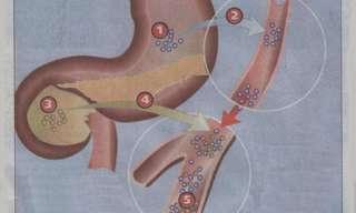 סכרת - מחקרים חדשים ודרכי טיפול