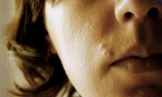 10 ההרגלים היומיומיים שעלולים לגרום להתפרצות של מחלת הרוזציאה