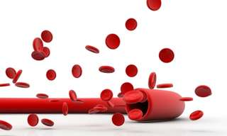 שאלות ותשובות על לחץ דם נמוך