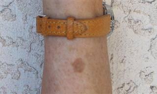 מה הסימן הזה על העור והאם הרופא צריך לבדוק אותו?