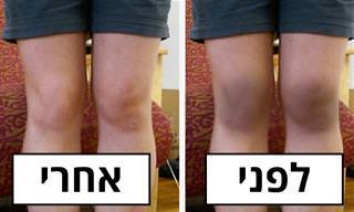 8 טיפולים טבעיים בברכיים ומרפקים שחורים