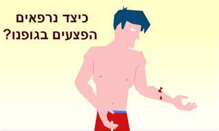 ססרטון האנימציה שיחשוף בפניכם את הסוד שיקום העור בגופנו