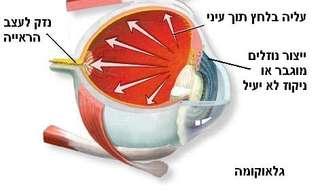 בריאות העין - טיפול בגלאוקומה