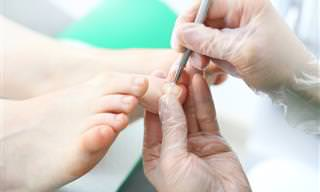 מיומנו של פודאיטור: כל מה שצריך לדעת על טיפול לייזר לציפורן חודרנית