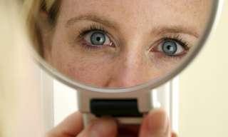 10 תסמינים למחלות שניתן לאתר דרך העיניים