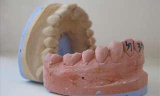 על הקשר בין הגיינת הפה לבריאות הגוף