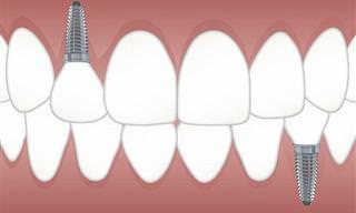 השתלת שיניים ביום אחד - איך זה עובד, למי מתאים והאם זה בטוח?